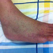 Chikungunya on right foot